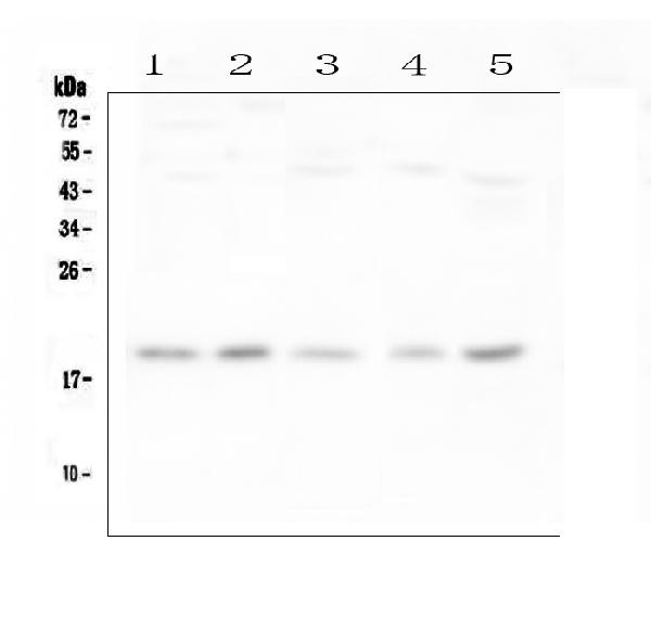 Figure 1. Western blot analysis of IFNG using anti-IFNG antibody (A00393-3). <br>Electrophoresis was performed on a 5-20% SDS-PAGE gel at 70V (Stacking gel) / 90V (Resolving gel) for 2-3 hours. The sample well of each lane was loaded with 50ug of sample under reducing conditions. <br>Lane 1: human Hela whole cell lysates,<br>Lane 2: human placenta tissue lysates,<br>Lane 3: human U-87MG whole cell lysates,<br>Lane 4: human HL-60 whole cell lysates,<br>Lane 5: human U-937 whole cell lysates. <br>After Electrophoresis, proteins were transferred to a Nitrocellulose membrane at 150mA for 50-90 minutes. Blocked the membrane with 5% Non-fat Milk/ TBS for 1.5 hour at RT. The membrane was incubated with rabbit anti-IFNG antigen affinity purified polyclonal antibody (Catalog # A00393-3) at 0.5 μg/mL overnight at 4°C, then washed with TBS-0.1%Tween 3 times with 5 minutes each and probed with a goat anti-rabbit IgG-HRP secondary antibody at a dilution of 1:10000 for 1.5 hour at RT. The signal is developed using an Enhanced Chemiluminescent detection (ECL) kit (Catalog # EK1002) with Tanon 5200 system. A specific band was detected for IFNG at approximately 19KD. The expected band size for IFNG is at 19KD.
