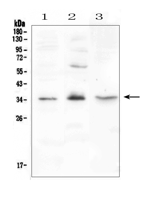Figure 1. Western blot analysis of FGF23 using anti-FGF23 antibody (A00478-3). <br>Electrophoresis was performed on a 5-20% SDS-PAGE gel at 70V (Stacking gel) / 90V (Resolving gel) for 2-3 hours. The sample well of each lane was loaded with 50ug of sample under reducing conditions. <br>Lane 1: rat testis tissue lysate,<br>Lane 2: rat PC-12 whole cell lysate,<br>Lane 3: mouse testis tissue lysate. <br>After Electrophoresis, proteins were transferred to a Nitrocellulose membrane at 150mA for 50-90 minutes. Blocked the membrane with 5% Non-fat Milk/ TBS for 1.5 hour at RT. The membrane was incubated with rabbit anti-FGF23 antigen affinity purified polyclonal antibody (Catalog # A00478-3) at 0.5 μg/mL overnight at 4°C, then washed with TBS-0.1%Tween 3 times with 5 minutes each and probed with a goat anti-rabbit IgG-HRP secondary antibody at a dilution of 1:10000 for 1.5 hour at RT. The signal is developed using an Enhanced Chemiluminescent detection (ECL) kit (Catalog # EK1002) with Tanon 5200 system. A specific band was detected for FGF23 at approximately 35KD. The expected band size for FGF23 is at 28KD.