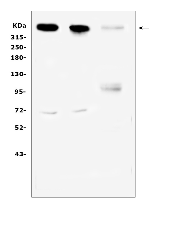 Figure 1. Western blot analysis of Sacsin using anti-Sacsin antibody (A00519). <br>Electrophoresis was performed on a 5-20% SDS-PAGE gel at 70V (Stacking gel) / 90V (Resolving gel) for 2-3 hours. The sample well of each lane was loaded with 50ug of sample under reducing conditions. <br>Lane 1: rat brain tissue lysates,<br>Lane 2: mouse brain tissue lysates,<br>Lane 3: human Hela cell lysates.<br>After Electrophoresis, proteins were transferred to a Nitrocellulose membrane at 150mA for 50-90 minutes. Blocked the membrane with 5% Non-fat Milk/ TBS for 1.5 hour at RT. The membrane was incubated with rabbit anti-Sacsin antigen affinity purified polyclonal antibody (Catalog # A00519) at 0.5 μg/mL overnight at 4°C, then washed with TBS-0.1%Tween 3 times with 5 minutes each and probed with a goat anti-rabbit IgG-HRP secondary antibody at a dilution of 1:10000 for 1.5 hour at RT. The signal is developed using an Enhanced Chemiluminescent detection (ECL) kit (Catalog # EK1002) with Tanon 5200 system. A specific band was detected for Sacsin at approximately 521KD. The expected band size for Sacsin is at 521KD.