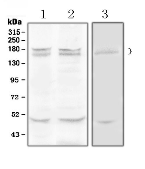 Figure 1. Western blot analysis of Thrombospondin using anti- Thrombospondin antibody (A00667-1). <br>Electrophoresis was performed on a 5-20% SDS-PAGE gel at 70V (Stacking gel) / 90V (Resolving gel) for 2-3 hours. The sample well of each lane was loaded with 50ug of sample under reducing conditions. <br>Lane 1: rat liver tissue lysates, <br>Lane 2: mouse liver tissue lysates, <br>Lane 3: HELA whole Cell lysates. <br>After Electrophoresis, proteins were transferred to a Nitrocellulose membrane at 150mA for 50-90 minutes. Blocked the membrane with 5% Non-fat Milk/ TBS for 1.5 hour at RT. The membrane was incubated with rabbit anti- Thrombospondin antigen affinity purified polyclonal antibody (Catalog # A00667-1) at 0.5 μg/mL overnight at 4°C, then washed with TBS-0.1%Tween 3 times with 5 minutes each and probed with a goat anti-rabbit IgG-HRP secondary antibody at a dilution of 1:10000 for 1.5 hour at RT. The signal is developed using an Enhanced Chemiluminescent detection (ECL) kit (Catalog # EK1002) with Tanon 5200 system. A specific band was detected for Thrombospondin at approximately 165KD, 180KD. The expected band size for Thrombospondin is at 130KD.