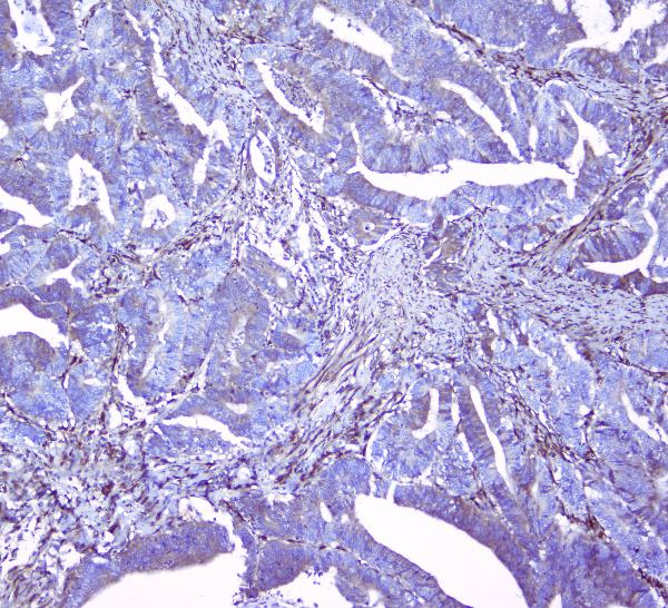 Figure 5. IHC analysis of Collagen III using anti-Collagen III antibody (A00788-3).<br> Collagen III was detected in paraffin-embedded section of human intestinal cancer tissues. Heat mediated antigen retrieval was performed in citrate buffer (pH6, epitope retrieval solution) for 20 mins. The tissue section was blocked with 10% goat serum. The tissue section was then incubated with 1μg/ml rabbit anti-Collagen III Antibody (A00788-3) overnight at 4°C. Biotinylated goat anti-rabbit IgG was used as secondary antibody and incubated for 30 minutes at 37°C. The tissue section was developed using Strepavidin-Biotin-Complex (SABC)(Catalog # SA1022) with DAB as the chromogen.