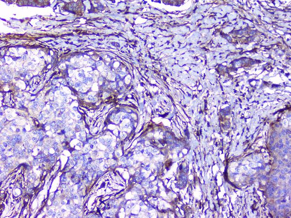 Figure 6. IHC analysis of Collagen III using anti-Collagen III antibody (A00788-3).<br> Collagen III was detected in paraffin-embedded section of human mammary cancer tissues. Heat mediated antigen retrieval was performed in citrate buffer (pH6, epitope retrieval solution) for 20 mins. The tissue section was blocked with 10% goat serum. The tissue section was then incubated with 1μg/ml rabbit anti-Collagen III Antibody (A00788-3) overnight at 4°C. Biotinylated goat anti-rabbit IgG was used as secondary antibody and incubated for 30 minutes at 37°C. The tissue section was developed using Strepavidin-Biotin-Complex (SABC)(Catalog # SA1022) with DAB as the chromogen.