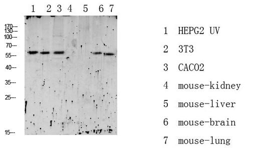 Western blot analysis of various lysate, antibody was diluted at 1000. Secondary antibody was diluted at 1: 20000.