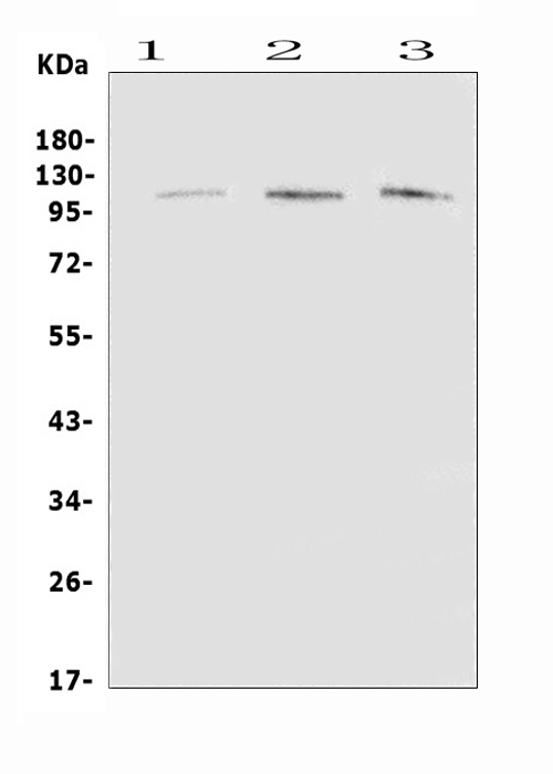 Figure 1. Western blot analysis of EML4 using anti-EML4 antibody (A00930-1). <br>Electrophoresis was performed on a 5-20% SDS-PAGE gel at 70V (Stacking gel) / 90V (Resolving gel) for 2-3 hours. The sample well of each lane was loaded with 50ug of sample under reducing conditions. <br>Lane 1: rat brain tissue lysates,<br>Lane 2: mouse brain tissue lysates,<br>Lane 3: mouse lung tissue lysates. <br>After Electrophoresis, proteins were transferred to a Nitrocellulose membrane at 150mA for 50-90 minutes. Blocked the membrane with 5% Non-fat Milk/ TBS for 1.5 hour at RT. The membrane was incubated with rabbit anti-EML4 antigen affinity purified polyclonal antibody (Catalog # A00930-1) at 0.5 μg/mL overnight at 4°C, then washed with TBS-0.1%Tween 3 times with 5 minutes each and probed with a goat anti-rabbit IgG-HRP secondary antibody at a dilution of 1:10000 for 1.5 hour at RT. The signal is developed using an Enhanced Chemiluminescent detection (ECL) kit (Catalog # EK1002) with Tanon 5200 system. A specific band was detected for EML4 at approximately 120KD. The expected band size for EML4 is at 109KD.