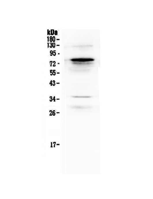 Figure 1. Western blot analysis of Complement C9 using anti-Complement C9 antibody (A01010-2).  <br> Electrophoresis was performed on a 5-20% SDS-PAGE gel at 70V (Stacking gel) / 90V (Resolving gel) for 2-3 hours. The sample well of each lane was loaded with 50ug of sample under reducing conditions.  <br> Lane 1: human placenta tissue lysates.<br> After Electrophoresis, proteins were transferred to a Nitrocellulose membrane at 150mA for 50-90 minutes. Blocked the membrane with 5% Non-fat Milk/ TBS for 1.5 hour at RT. The membrane was incubated with rabbit anti-Complement C9 antigen affinity purified polyclonal antibody (Catalog # A01010-2) at 0.5 μg/mL overnight at 4°C, then washed with TBS-0.1%Tween 3 times with 5 minutes each and probed with a goat anti-rabbit IgG-HRP secondary antibody at a dilution of 1:10000 for 1.5 hour at RT. The signal is developed using an Enhanced Chemiluminescent detection (ECL) kit (Catalog # EK1002) with Tanon 5200 system. A specific band was detected for Complement C9 at approximately 80KD. The expected band size for Complement C9 is at 63KD.