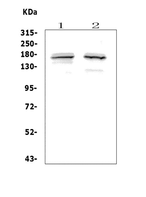 Figure 1. Western blot analysis of ASXL1 using anti-ASXL1 antibody (A01099-1).<br>  Electrophoresis was performed on a 5-20% SDS-PAGE gel at 70V (Stacking gel) / 90V (Resolving gel) for 2-3 hours. The sample well of each lane was loaded with 50ug of sample under reducing conditions.<br>  Lane 1: human COLO-32 whole cell lysates, <br> Lane 2: human Jurkat whole cell lysates. <br>  After Electrophoresis, proteins were transferred to a Nitrocellulose membrane at 150mA for 50-90 minutes. Blocked the membrane with 5% Non-fat Milk/ TBS for 1.5 hour at RT. The membrane was incubated with rabbit anti-ASXL1 antigen affinity purified polyclonal antibody (Catalog # A01099-1) at 0.5 μg/mL overnight at 4°C, then washed with TBS-0.1%Tween 3 times with 5 minutes each and probed with a goat anti-rabbit IgG-HRP secondary antibody at a dilution of 1:5000 for 1.5 hour at RT. The signal is developed using an Enhanced Chemiluminescent detection (ECL) kit (Catalog # EK1002) with Tanon 5200 system. A specific band was detected for ASXL1 at approximately 165KD. The expected band size for ASXL1 is at 165KD.