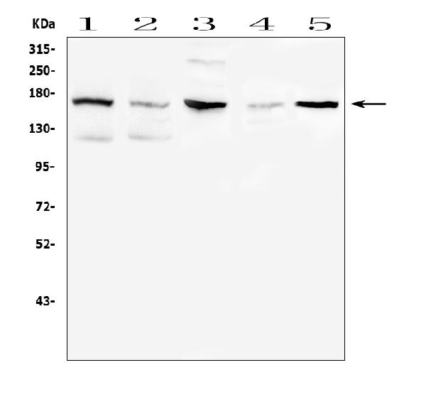Figure 7. Western blot analysis of ITGA2B using anti-ITGA2B antibody (A01102). <br> Electrophoresis was performed on a 5-20% SDS-PAGE gel at 70V (Stacking gel) / 90V (Resolving gel) for 2-3 hours. The sample well of each lane was loaded with 50ug of sample under reducing conditions. <br> Lane 1: human K562 whole cell lysates, <br> Lane 2: human Raji whole cell lysates, <br> Lane 3: rat testis tissue lysates, <br> Lane 4: rat brain tissue lysates, <br> Lane 5: mouse testis tissue lysates. <br> After Electrophoresis, proteins were transferred to a Nitrocellulose membrane at 150mA for 50-90 minutes. Blocked the membrane with 5% Non-fat Milk/ TBS for 1.5 hour at RT. The membrane was incubated with rabbit anti-ITGA2B antigen affinity purified polyclonal antibody (Catalog # A01102) at 0.5 μg/mL overnight at 4°C, then washed with TBS-0.1%Tween 3 times with 5 minutes each and probed with a goat anti-rabbit IgG-HRP secondary antibody at a dilution of 1:10000 for 1.5 hour at RT. The signal is developed using an Enhanced Chemiluminescent detection (ECL) kit (Catalog # EK1002) with Tanon 5200 system. A specific band was detected for ITGA2B at approximately 160KD. The expected band size for ITGA2B is at 113KD.