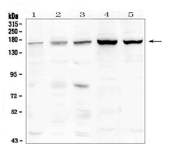 Figure 1. Western blot analysis of TEK using anti-TEK antibody (A01274-1). <br>Electrophoresis was performed on a 5-20% SDS-PAGE gel at 70V (Stacking gel) / 90V (Resolving gel) for 2-3 hours. The sample well of each lane was loaded with 50ug of sample under reducing conditions. <br>Lane 1: human placenta tissue lysates,<br>Lane 2: human Caco-2 whole cell lysates,<br>Lane 3: human Hela whole cell lysates,<br>Lane 4: rat liver tissue lysates,<br>Lane 5: mouse liver tissue lysates. <br>After Electrophoresis, proteins were transferred to a Nitrocellulose membrane at 150mA for 50-90 minutes. Blocked the membrane with 5% Non-fat Milk/ TBS for 1.5 hour at RT. The membrane was incubated with rabbit anti-TEK antigen affinity purified polyclonal antibody (Catalog # A01274-1) at 0.5 μg/mL overnight at 4°C, then washed with TBS-0.1%Tween 3 times with 5 minutes each and probed with a goat anti-rabbit IgG-HRP secondary antibody at a dilution of 1:10000 for 1.5 hour at RT. The signal is developed using an Enhanced Chemiluminescent detection (ECL) kit (Catalog # EK1002) with Tanon 5200 system. A specific band was detected for TEK at approximately 160KD. The expected band size for TEK is at 126KD.