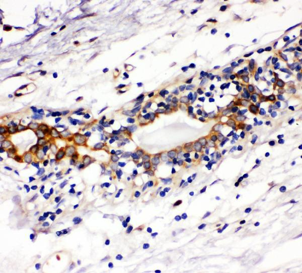 Figure 2. IHC analysis of Kit using anti-Kit antibody (A01335-1). <br> Kit was detected in paraffin-embedded section of human mammary cancer tissues. Heat mediated antigen retrieval was performed in citrate buffer (pH6, epitope retrieval solution) for 20 mins. The tissue section was blocked with 10% goat serum. The tissue section was then incubated with 1μg/ml rabbit anti-Kit Antibody (A01335-1) overnight at 4°C. Biotinylated goat anti-rabbit IgG was used as secondary antibody and incubated for 30 minutes at 37°C. The tissue section was developed using Strepavidin-Biotin-Complex (SABC)(Catalog # SA1022) with DAB as the chromogen.