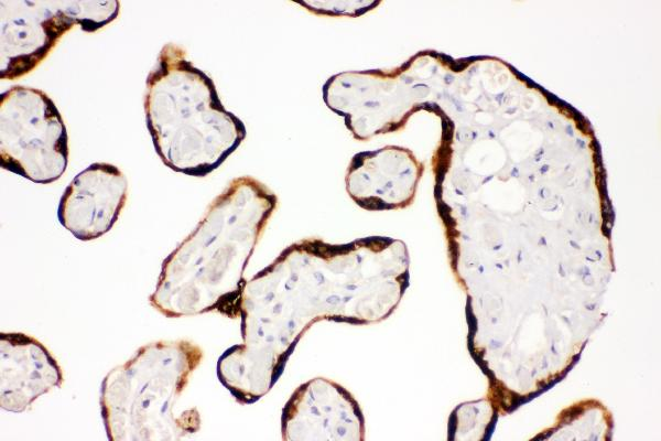 Figure 3. IHC analysis of Kit using anti-Kit antibody (A01335-1). <br> Kit was detected in paraffin-embedded section of human placenta tissues. Heat mediated antigen retrieval was performed in citrate buffer (pH6, epitope retrieval solution) for 20 mins. The tissue section was blocked with 10% goat serum. The tissue section was then incubated with 1μg/ml rabbit anti-Kit Antibody (A01335-1) overnight at 4°C. Biotinylated goat anti-rabbit IgG was used as secondary antibody and incubated for 30 minutes at 37°C. The tissue section was developed using Strepavidin-Biotin-Complex (SABC)(Catalog # SA1022) with DAB as the chromogen.