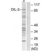 Western blot analysis of extracts from Jurkat cells, using DIL-2 antibody A01610.