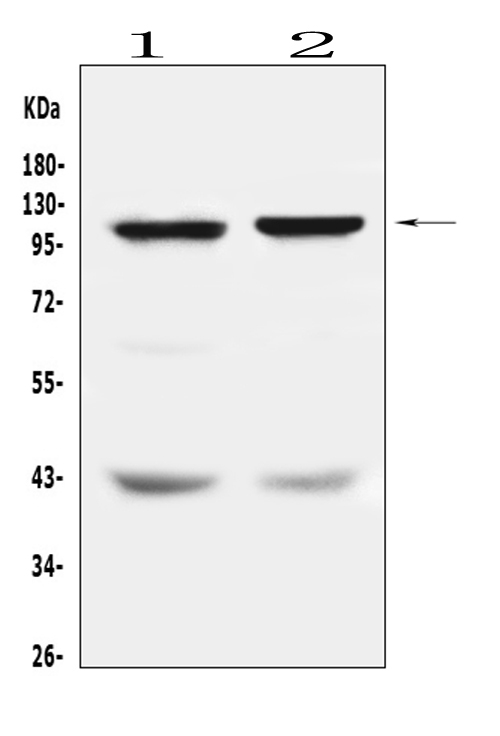 Figure 1. Western blot analysis of DPYD using anti-DPYD antibody (A01749). <br>Electrophoresis was performed on a 5-20% SDS-PAGE gel at 70V (Stacking gel) / 90V (Resolving gel) for 2-3 hours. The sample well of each lane was loaded with 50ug of sample under reducing conditions. <br>Lane 1: human Hela whole cell lysates,<br>Lane 2: human SW620 whole cell lysates. <br>After Electrophoresis, proteins were transferred to a Nitrocellulose membrane at 150mA for 50-90 minutes. Blocked the membrane with 5% Non-fat Milk/ TBS for 1.5 hour at RT. The membrane was incubated with rabbit anti-DPYD antigen affinity purified polyclonal antibody (Catalog # A01749) at 0.5 μg/mL overnight at 4°C, then washed with TBS-0.1%Tween 3 times with 5 minutes each and probed with a goat anti-rabbit IgG-HRP secondary antibody at a dilution of 1:10000 for 1.5 hour at RT. The signal is developed using an Enhanced Chemiluminescent detection (ECL) kit (Catalog # EK1002) with Tanon 5200 system. A specific band was detected for DPYD at approximately 111KD. The expected band size for DPYD is at 111KD.