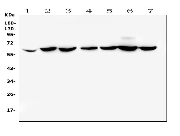 Figure 1. Western blot analysis of CD1b using anti-CD1b antibody (A02158-1). <br>Electrophoresis was performed on a 5-20% SDS-PAGE gel at 70V (Stacking gel) / 90V (Resolving gel) for 2-3 hours. The sample well of each lane was loaded with 50ug of sample under reducing conditions. <br>Lane 1: human placenta tissue lysates,<br>Lane 2: human PC-3 whole cell lysate,<br>Lane 3: human SW620 whole cell lysate,<br>Lane 4: human THP-1 whole cell lysate,<br>Lane 5: human MDA-MB-231 whole cell lysate,<br>Lane 6: human K562 whole cell lysate,<br>Lane 7: human A431 whole cell lysate. <br>After Electrophoresis, proteins were transferred to a Nitrocellulose membrane at 150mA for 50-90 minutes. Blocked the membrane with 5% Non-fat Milk/ TBS for 1.5 hour at RT. The membrane was incubated with rabbit anti-CD1b antigen affinity purified polyclonal antibody (Catalog # A02158-1) at 0.5 μg/mL overnight at 4°C, then washed with TBS-0.1%Tween 3 times with 5 minutes each and probed with a goat anti-rabbit IgG-HRP secondary antibody at a dilution of 1:10000 for 1.5 hour at RT. The signal is developed using an Enhanced Chemiluminescent detection (ECL) kit (Catalog # EK1002) with Tanon 5200 system. A specific band was detected for CD1b at approximately 65KD. The expected band size for CD1b is at 37KD.