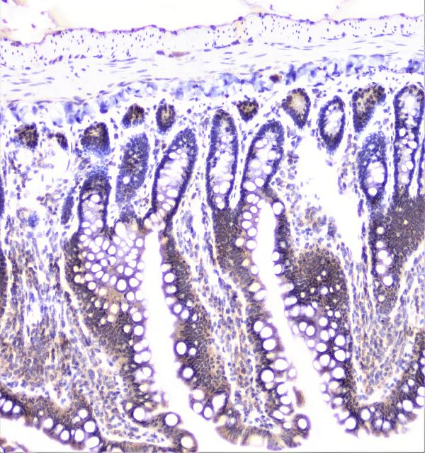 Figure 15. IHC analysis of UBE2I/UBC9 using anti-UBE2I/UBC9 antibody (A02295). <br> UBE2I/UBC9 was detected in paraffin-embedded section of rat intestine tissue. Heat mediated antigen retrieval was performed in citrate buffer (pH6, epitope retrieval solution) for 20 mins. The tissue section was blocked with 10% goat serum. The tissue section was then incubated with 1μg/ml rabbit anti-UBE2I/UBC9 Antibody (A02295) overnight at 4°C. Biotinylated goat anti-rabbit IgG was used as secondary antibody and incubated for 30 minutes at 37°C. The tissue section was developed using Strepavidin-Biotin-Complex (SABC)(Catalog # SA1022) with DAB as the chromogen.