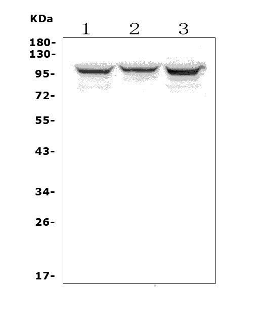 Figure 1. Western blot analysis of ADAM15 using anti-ADAM15 antibody (A02593-4).<br>  Electrophoresis was performed on a 5-20% SDS-PAGE gel at 70V (Stacking gel) / 90V (Resolving gel) for 2-3 hours. The sample well of each lane was loaded with 50ug of sample under reducing conditions.<br>  Lane 1: human MDA-MB-453 whole cell lysates, <br> Lane 2: human U-87MG whole cell lysates, <br> Lane 3: human HEK293 whole cell lysates. <br>  After Electrophoresis, proteins were transferred to a Nitrocellulose membrane at 150mA for 50-90 minutes. Blocked the membrane with 5% Non-fat Milk/ TBS for 1.5 hour at RT. The membrane was incubated with rabbit anti-ADAM15 antigen affinity purified polyclonal antibody (Catalog # A02593-4) at 0.5 μg/mL overnight at 4°C, then washed with TBS-0.1%Tween 3 times with 5 minutes each and probed with a goat anti-rabbit IgG-HRP secondary antibody at a dilution of 1:5000 for 1.5 hour at RT. The signal is developed using an Enhanced Chemiluminescent detection (ECL) kit (Catalog # EK1002) with Tanon 5200 system. A specific band was detected for ADAM15 at approximately 100KD. The expected band size for ADAM15 is at 93KD.