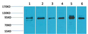 <h4>Figure 1. Western blotting validation for Anti-ERK 5 MAPK7 Antibody A02812-2</h4> Western Blot (WB) analysis of 1) HeLa