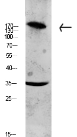 <h4>Figure 1. Western blotting validation for Anti-Collagen XI alpha COL11A1 Antibody A02909-2</h4> Western blot analysis of CACO2 lysate