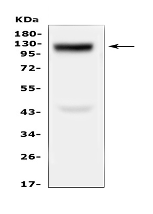 Figure 1. Western blot analysis of COL17A1 using anti-COL17A1 antibody (A03031-1). <br>Electrophoresis was performed on a 5-20% SDS-PAGE gel at 70V (Stacking gel) / 90V (Resolving gel) for 2-3 hours. The sample well of each lane was loaded with 50ug of sample under reducing conditions. <br>Lane 1: human Hela whole cell lysates. <br>After Electrophoresis, proteins were transferred to a Nitrocellulose membrane at 150mA for 50-90 minutes. Blocked the membrane with 5% Non-fat Milk/ TBS for 1.5 hour at RT. The membrane was incubated with rabbit anti-COL17A1 antigen affinity purified polyclonal antibody (Catalog # A03031-1) at 0.5 μg/mL overnight at 4°C, then washed with TBS-0.1%Tween 3 times with 5 minutes each and probed with a goat anti-rabbit IgG-HRP secondary antibody at a dilution of 1:10000 for 1.5 hour at RT. The signal is developed using an Enhanced Chemiluminescent detection (ECL) kit (Catalog # EK1002) with Tanon 5200 system. A specific band was detected for COL17A1 at approximately 125KD. The expected band size for COL17A1 is at 150KD.