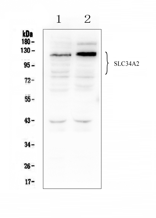 Figure 1. Western blot analysis of SLC34A2 using anti-SLC34A2 antibody (A03957-1). <br>Electrophoresis was performed on a 5-20% SDS-PAGE gel at 70V (Stacking gel) / 90V (Resolving gel) for 2-3 hours. The sample well of each lane was loaded with 50ug of sample under reducing conditions. <br>Lane 1: human HEK293 whole cell lysates,<br>Lane 2: human K562 whole cell lysates. <br>After Electrophoresis, proteins were transferred to a Nitrocellulose membrane at 150mA for 50-90 minutes. Blocked the membrane with 5% Non-fat Milk/ TBS for 1.5 hour at RT. The membrane was incubated with rabbit anti-SLC34A2 antigen affinity purified polyclonal antibody (Catalog # A03957-1) at 0.5 μg/mL overnight at 4°C, then washed with TBS-0.1%Tween 3 times with 5 minutes each and probed with a goat anti-rabbit IgG-HRP secondary antibody at a dilution of 1:10000 for 1.5 hour at RT. The signal is developed using an Enhanced Chemiluminescent detection (ECL) kit (Catalog # EK1002) with Tanon 5200 system. A specific band was detected for SLC34A2 at approximately 76-130KD. The expected band size for SLC34A2 is at 76KD.