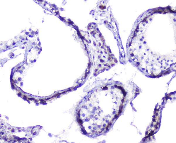 Figure 5. IHC analysis of Hsp105 using anti-Hsp105 antibody (A04168). <br> Hsp105 was detected in paraffin-embedded section of human testis tissues. Heat mediated antigen retrieval was performed in citrate buffer (pH6, epitope retrieval solution) for 20 mins. The tissue section was blocked with 10% goat serum. The tissue section was then incubated with 2μg/ml rabbit anti-Hsp105 Antibody (A04168) overnight at 4°C. Biotinylated goat anti-rabbit IgG was used as secondary antibody and incubated for 30 minutes at 37°C. The tissue section was developed using Strepavidin-Biotin-Complex (SABC)(Catalog # SA1022) with DAB as the chromogen.