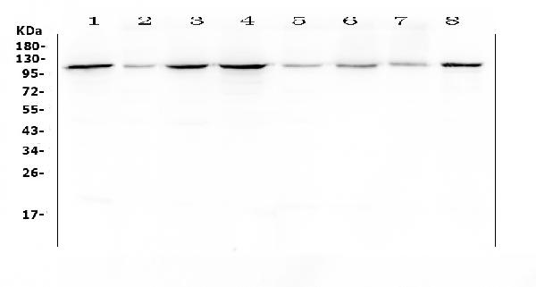 Figure 1. Western blot analysis of Hsp105 using anti-Hsp105 antibody (A04168).  <br> Electrophoresis was performed on a 5-20% SDS-PAGE gel at 70V (Stacking gel) / 90V (Resolving gel) for 2-3 hours. The sample well of each lane was loaded with 50ug of sample under reducing conditions.   <br> Lane 1: human Hela whole cell lysates, <br> Lane 2: human placenta tissue lysates,  <br> Lane 3: human COLO-320 whole cell lysates, <br> Lane 4: human SGC-7901 whole cell lysates, <br> Lane 5: human HepG2 whole cell lysates, <br> Lane 6: human K562 whole cell lysates, <br> Lane 7: human Jurkat whole cell lysates, <br> Lane 8: human SK-OV-3 whole cell lysates.   <br> After Electrophoresis, proteins were transferred to a Nitrocellulose membrane at 150mA for 50-90 minutes. Blocked the membrane with 5% Non-fat Milk/ TBS for 1.5 hour at RT. The membrane was incubated with rabbit anti-Hsp105 antigen affinity purified polyclonal antibody (Catalog # A04168) at 0.5 μg/mL overnight at 4°C, then washed with TBS-0.1%Tween 3 times with 5 minutes each and probed with a goat anti-rabbit IgG-HRP secondary antibody at a dilution of 1:10000 for 1.5 hour at RT. The signal is developed using an Enhanced Chemiluminescent detection (ECL) kit (Catalog # EK1002) with Tanon 5200 system. A specific band was detected for Hsp105 at approximately 105KD. The expected band size for Hsp105 is at 97KD.