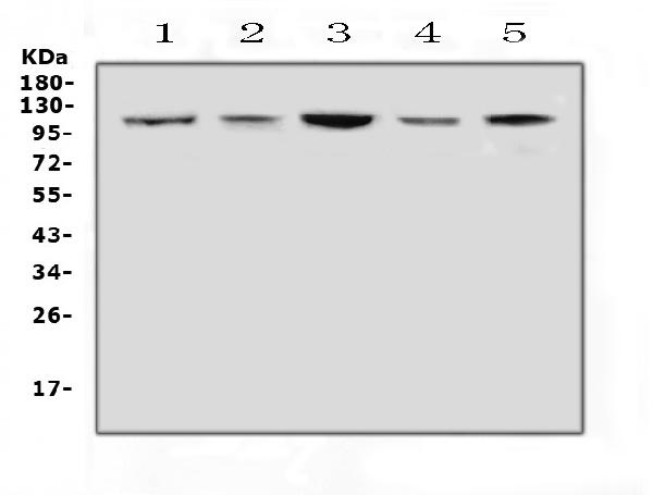 Figure 2. Western blot analysis of Hsp105 using anti-Hsp105 antibody (A04168). <br>Electrophoresis was performed on a 5-20% SDS-PAGE gel at 70V (Stacking gel) / 90V (Resolving gel) for 2-3 hours. The sample well of each lane was loaded with 50ug of sample under reducing conditions. <br>Lane 1: rat brain tissue lysates, <br>Lane 2: rat lung tissue lysates, <br>Lane 3: mouse brain tissue lysates, <br>Lane 4: mouse lung tissue lysates, <br>Lane 5: mouse NIH3T3 whole cell lysates. <br>After Electrophoresis, proteins were transferred to a Nitrocellulose membrane at 150mA for 50-90 minutes. Blocked the membrane with 5% Non-fat Milk/ TBS for 1.5 hour at RT. The membrane was incubated with rabbit anti-Hsp105 antigen affinity purified polyclonal antibody (Catalog # A04168) at 0.5 ?g/mL overnight at 4?C, then washed with TBS-0.1%Tween 3 times with 5 minutes each and probed with a goat anti-rabbit IgG-HRP secondary antibody at a dilution of 1:10000 for 1.5 hour at RT. The signal is developed using an Enhanced Chemiluminescent detection (ECL) kit (Catalog # EK1002) with Tanon 5200 system. A specific band was detected for Hsp105 at approximately 105KD. The expected band size for Hsp105 is at 97KD.