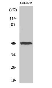Western Blot (WB) analysis of specific cells using IL-13Ralpha1 Polyclonal antibody.