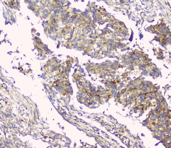 Figure 2. IHC analysis of HAS1 using anti-HAS1 antibody (A04784-1). <br> HAS1 was detected in paraffin-embedded section of human lung cancer tissue. Heat mediated antigen retrieval was performed in citrate buffer (pH6, epitope retrieval solution) for 20 mins. The tissue section was blocked with 10% goat serum. The tissue section was then incubated with 1ugμg/ml rabbit anti-HAS1 Antibody (A04784-1) overnight at 4°C. Biotinylated goat anti-rabbit IgG was used as secondary antibody and incubated for 30 minutes at 37°C. The tissue section was developed using Strepavidin-Biotin-Complex (SABC)(Catalog # SA1022) with DAB as the chromogen.