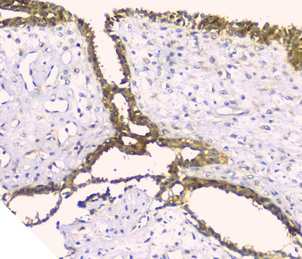 Figure 4. IHC analysis of HAS1 using anti-HAS1 antibody (A04784-1). <br> HAS1 was detected in paraffin-embedded section of human mammary cancer tissue. Heat mediated antigen retrieval was performed in citrate buffer (pH6, epitope retrieval solution) for 20 mins. The tissue section was blocked with 10% goat serum. The tissue section was then incubated with 1ugμg/ml rabbit anti-HAS1 Antibody (A04784-1) overnight at 4°C. Biotinylated goat anti-rabbit IgG was used as secondary antibody and incubated for 30 minutes at 37°C. The tissue section was developed using Strepavidin-Biotin-Complex (SABC)(Catalog # SA1022) with DAB as the chromogen.