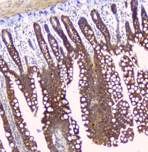 Figure 6. IHC analysis of HAS1 using anti-HAS1 antibody (A04784-1). <br> HAS1 was detected in paraffin-embedded section of rat small intestine tissue. Heat mediated antigen retrieval was performed in citrate buffer (pH6, epitope retrieval solution) for 20 mins. The tissue section was blocked with 10% goat serum. The tissue section was then incubated with 1ugμg/ml rabbit anti-HAS1 Antibody (A04784-1) overnight at 4°C. Biotinylated goat anti-rabbit IgG was used as secondary antibody and incubated for 30 minutes at 37°C. The tissue section was developed using Strepavidin-Biotin-Complex (SABC)(Catalog # SA1022) with DAB as the chromogen.