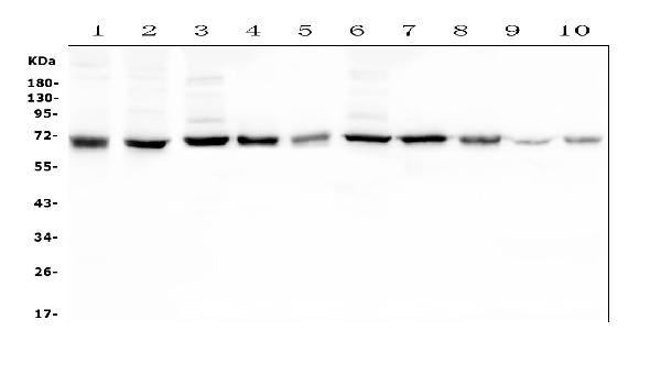 Figure 1. Western blot analysis of HAS1 using anti- HAS1 antibody (A04784-1). <br> Electrophoresis was performed on a 5-20% SDS-PAGE gel at 70V (Stacking gel) / 90V (Resolving gel) for 2-3 hours. The sample well of each lane was loaded with 50ug of sample under reducing conditions. <br> Lane 1: human SHG-44 whole cell lysates,<br> Lane 2: human THP-1 whole cell lysates,<br> Lane 3: rat brain tissue lysates,<br> Lane 4: rat smooth muscle tissue lysates,<br> Lane 5: rat ovary tissue lysates,<br> Lane 6: mouse brain tissue lysates,<br> Lane 7: mouse smooth muscle tissue lysates,<br> Lane 8: mouse ovary tissue lysates,<br> Lane 9: mouse small intestine tissue lysates,<br> Lane 10: mouse Neuro-2a whole cell lysates.<br> After Electrophoresis, proteins were transferred to a Nitrocellulose membrane at 150mA for 50-90 minutes. Blocked the membrane with 5% Non-fat Milk/ TBS for 1.5 hour at RT. The membrane was incubated with rabbit anti- HAS1 antigen affinity purified polyclonal antibody (Catalog # A04784-1) at 0.5 μg/mL overnight at 4°C, then washed with TBS-0.1%Tween 3 times with 5 minutes each and probed with a goat anti-rabbit IgG-HRP secondary antibody at a dilution of 1:10000 for 1.5 hour at RT. The signal is developed using an Enhanced Chemiluminescent detection (ECL) kit (Catalog # EK1002) with Tanon 5200 system. A specific band was detected for HAS1 at approximately 70KD. The expected band size for HAS1 is at 65KD.