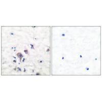 Immunohistochemical analysis of paraffin-embedded human brain tissue using GluR2/3 antibody A04827.