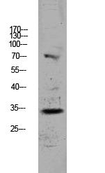 <h4>Figure 1. Western blotting validation for Anti-CDKN3 Antibody A05157-2</h4> Western blot analysis of HCT116 lysate