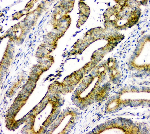 Figure 4. IHC analysis of DOK7 using anti- DOK7 antibody (A05165-1). <br> DOK7 was detected in paraffin-embedded section of human intestinal cancer tissues. Heat mediated antigen retrieval was performed in citrate buffer (pH6, epitope retrieval solution) for 20 mins. The tissue section was blocked with 10% goat serum. The tissue section was then incubated with 1μg/ml rabbit anti- DOK7 Antibody (A05165-1) overnight at 4°C. Biotinylated goat anti-rabbit IgG was used as secondary antibody and incubated for 30 minutes at 37°C. The tissue section was developed using Strepavidin-Biotin-Complex (SABC)(Catalog # SA1022) with DAB as the chromogen.