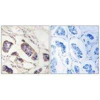Immunohistochemistry analysis of paraffin-embedded human breast carcinoma tissue, using PEX7 antibody A05365.