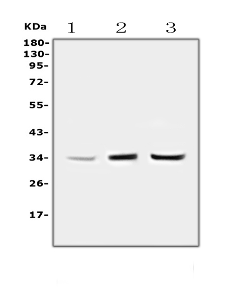 Figure 1. Western blot analysis of PPCS using anti-PPCS antibody (A05567-1). <br>Electrophoresis was performed on a 5-20% SDS-PAGE gel at 70V (Stacking gel) / 90V (Resolving gel) for 2-3 hours. The sample well of each lane was loaded with 50ug of sample under reducing conditions. <br>Lane 1: human Hela whole cell lysates,<br>Lane 2: human placenta tissue lysates,<br>Lane 3: human PC-3 whole cell lysates. <br>After Electrophoresis, proteins were transferred to a Nitrocellulose membrane at 150mA for 50-90 minutes. Blocked the membrane with 5% Non-fat Milk/ TBS for 1.5 hour at RT. The membrane was incubated with rabbit anti-PPCS antigen affinity purified polyclonal antibody (Catalog # A05567-1) at 0.5 μg/mL overnight at 4°C, then washed with TBS-0.1%Tween 3 times with 5 minutes each and probed with a goat anti-rabbit IgG-HRP secondary antibody at a dilution of 1:10000 for 1.5 hour at RT. The signal is developed using an Enhanced Chemiluminescent detection (ECL) kit (Catalog # EK1002) with Tanon 5200 system. A specific band was detected for PPCS at approximately 34KD. The expected band size for PPCS is at 34KD.