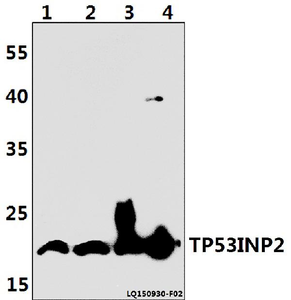 <h4>Figure 1. Western blotting validation for Anti-TP53INP2 Antibody A07881</h4> Western blot (WB) analysis of TP53INP2 polyclonal antibody at 1:500 dilution<br> Lane1:PC12 whole cell lysate(40ug)<br> Lane2:NIH-3T3 whole cell lysate(40ug)<br> Lane3:HEK293T whole cell lysate(40ug)<br> Lane4:RAW264.7 whole cell lysate(40ug)<br> Electrophoresis was performed on a SDS-PAGE gel. To determine SDS-PAGE gel concentration