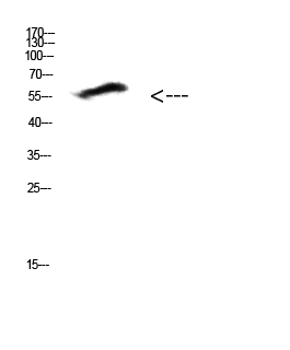 Western Blot (WB) analysis of HepG2 cells using antibody diluted at 1:500.