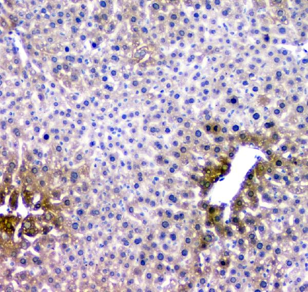 Figure 8. IHC analysis of RMI2 using anti- RMI2 antibody (A08685). <br> RMI2 was detected in paraffin-embedded section of mouse liver tissues. Heat mediated antigen retrieval was performed in citrate buffer (pH6, epitope retrieval solution) for 20 mins. The tissue section was blocked with 10% goat serum. The tissue section was then incubated with 1μg/ml rabbit anti- RMI2 Antibody (A08685) overnight at 4°C. Biotinylated goat anti-rabbit IgG was used as secondary antibody and incubated for 30 minutes at 37°C. The tissue section was developed using Strepavidin-Biotin-Complex (SABC)(Catalog # SA1022) with DAB as the chromogen.