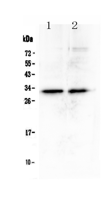 Figure 1. Western blot analysis of MED6 using anti-MED6 antibody (A09224). <br> Electrophoresis was performed on a 5-20% SDS-PAGE gel at 70V (Stacking gel) / 90V (Resolving gel) for 2-3 hours. The sample well of each lane was loaded with 50ug of sample under reducing conditions.<br>  Lane 1: human A431 whole cell lysates,<br> Lane 2: human U2OS whole cell lysates. <br> After Electrophoresis, proteins were transferred to a Nitrocellulose membrane at 150mA for 50-90 minutes. Blocked the membrane with 5% Non-fat Milk/ TBS for 1.5 hour at RT. The membrane was incubated with rabbit anti-MED6 antigen affinity purified polyclonal antibody (Catalog # A09224) at 0.5 μg/mL overnight at 4°C, then washed with TBS-0.1%Tween 3 times with 5 minutes each and probed with a goat anti-rabbit IgG-HRP secondary antibody at a dilution of 1:10000 for 1.5 hour at RT. The signal is developed using an Enhanced Chemiluminescent detection (ECL) kit (Catalog # EK1002) with Tanon 5200 system. A specific band was detected for MED6 at approximately 32KD. The expected band size for MED6 is at 28KD.