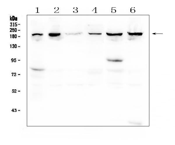 Figure 1. Western blot analysis of CPAMD8 using anti-CPAMD8 antibody (A12898). <br>Electrophoresis was performed on a 5-20% SDS-PAGE gel at 70V (Stacking gel) / 90V (Resolving gel) for 2-3 hours. The sample well of each lane was loaded with 50ug of sample under reducing conditions. <br>Lane 1: human placenta tissue lysates,<br>Lane 2: human T-47D whole cell lysates,<br>Lane 3: human U2OS whole cell lysates,<br>Lane 4: human K562 whole cell lysates,<br>Lane 5: human THP-1 whole cell lysates,<br>Lane 6: monkey COS-7 whole cell lysates. <br>After Electrophoresis, proteins were transferred to a Nitrocellulose membrane at 150mA for 50-90 minutes. Blocked the membrane with 5% Non-fat Milk/ TBS for 1.5 hour at RT. The membrane was incubated with rabbit anti-CPAMD8 antigen affinity purified polyclonal antibody (Catalog # A12898) at 0.5 μg/mL overnight at 4°C, then washed with TBS-0.1%Tween 3 times with 5 minutes each and probed with a goat anti-rabbit IgG-HRP secondary antibody at a dilution of 1:10000 for 1.5 hour at RT. The signal is developed using an Enhanced Chemiluminescent detection (ECL) kit (Catalog # EK1002) with Tanon 5200 system. A specific band was detected for CPAMD8 at approximately 207KD. The expected band size for CPAMD8 is at 207KD.