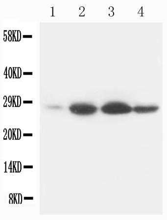 Anti-Bcl-2 antibody (monoclonal), MA1004, Western blotting<br>Lane 1: Rat Heart Tissue Lysate<br>Lane 2: Rat Spleen Tissue Lysate<br>Lane 3: Rat Small Intestine Tissue Lysate<br>Lane 4: Rat Liver Tissue Lysate<br><br>