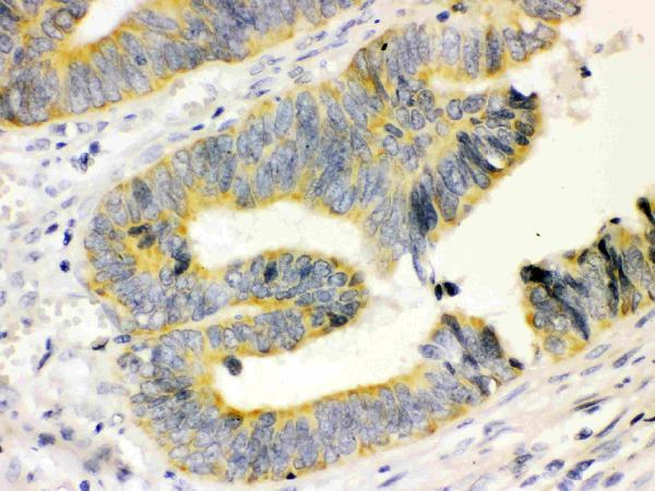 /antibody/ma1007-4-IHC-anti-calbindin-d-antibody-monoclonal-cb-955.jpg