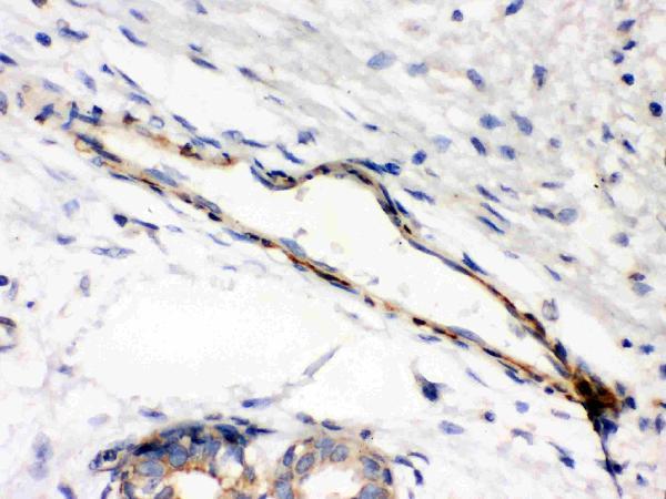 Anti-Caldesmon(smooth) antibody, MA1009, IHC(P)<br>IHC(P): Human Mammary Cancer Tissue