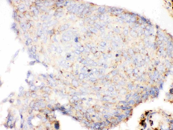 Anti- Cathepsin D antibody, MA1013, IHC(P)<br>IHC(P): Human Lung Cancer Tissue