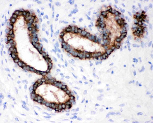 Anti-Cytokeratin Peptide 18 antibody (monoclonal), MA1026, IHC(P)<br>IHC(P): Human Mammary Cancer Tissue<br><br>