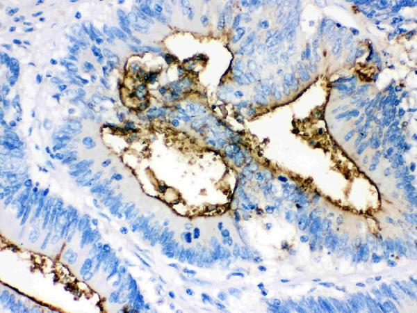 Anti- Episialin, EMA antibody, MA1039, IHC(P)<br>IHC(P): Human Intestinal Cancer Tissue