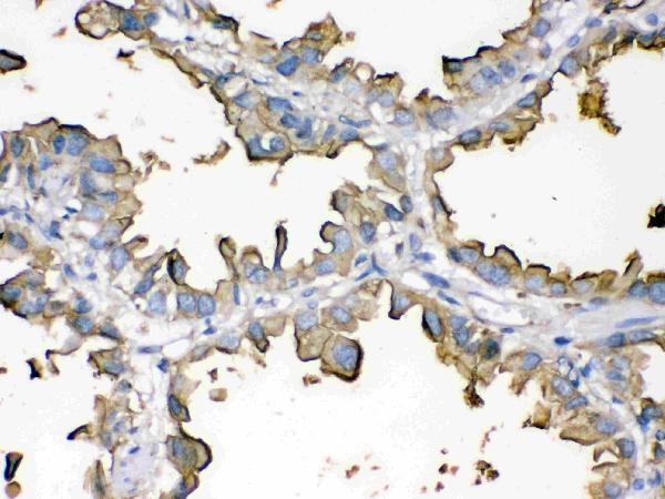 Anti- Episialin, EMA antibody, MA1039, IHC(P)<br>IHC(P): Human Lung Cancer Tissue