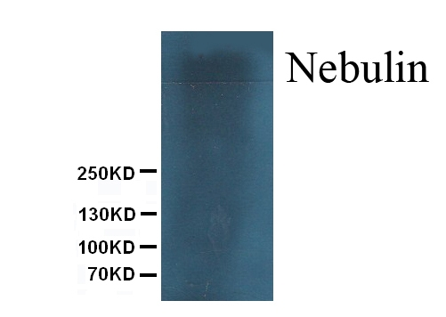 Anti- Nebulin antibody, MA1069, Western blotting<br>All lanes: Anti Nebulin (MA1069) at 0.5ug/ml<br> WB: Mouse Skeletal Muscle Tissue Lysate at 50ug<br> Predicted bind size: 773KD<br> Observed bind size: 773KD