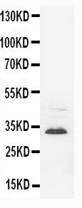 Anti-Synaptophysin antibody (monoclonal), MA1091, Western blotting<br>WB: Rat Brain Tissue Lysate